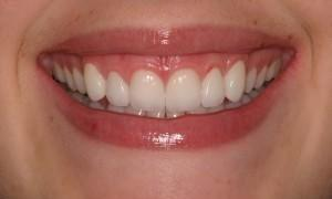 Straight white teeth at West Main Complete Dentistry in Rockaway, NJ