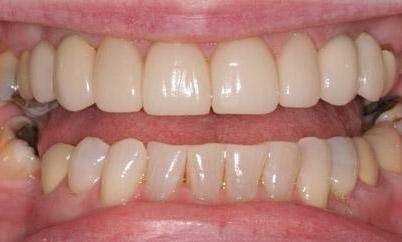Straightened teeth at West Main Complete Dentistry in Rockaway, NJ