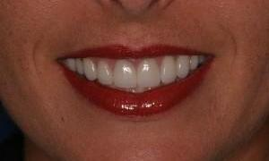 Teeth after whitening| West Main Complete Dentistry | Rockaway, NJ