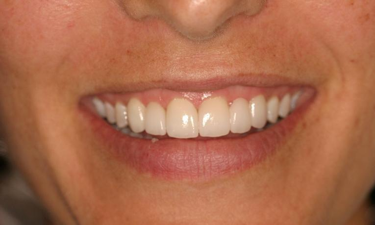 After restorative dentistry at West Main Complete Dentistry in Rockaway, NJ