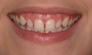 Teeth with gaps | West Main Complete Dentistry | Rockaway, NJ