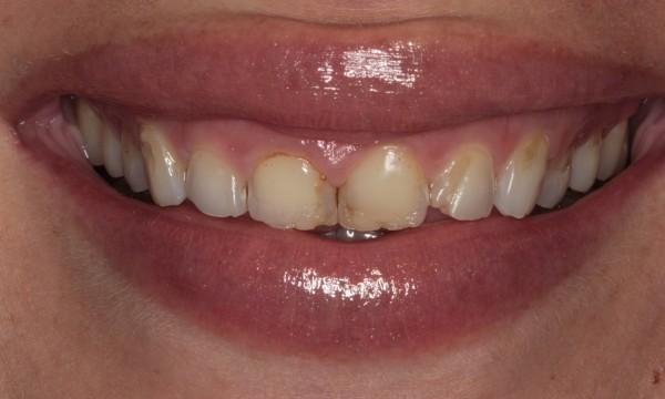 Stained, crooked teeth in Rockaway, NJ