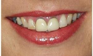 Teeth before whitening | West Main Complete Dentistry | Rockaway, NJ