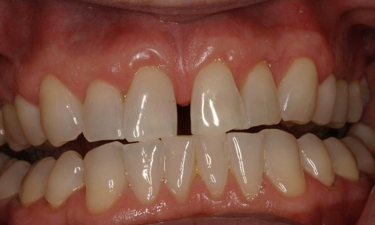 Before cosmetic dentistry | West Main Complete Dentistry | Rockaway, NJ