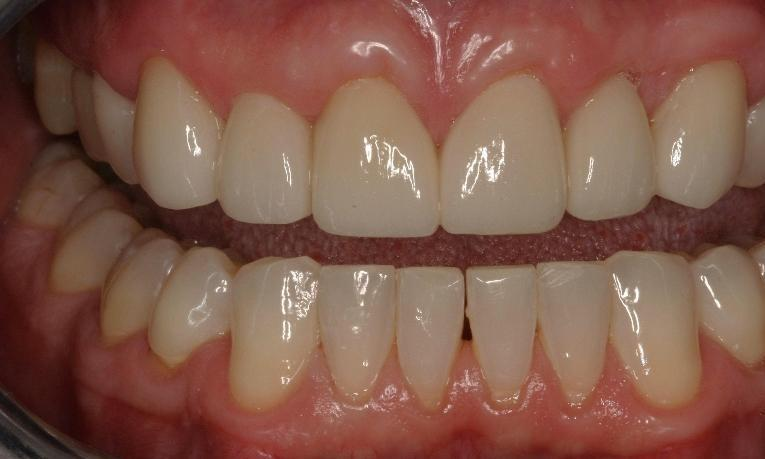 After Cosmetic Dentistry | West Main Complete Dentistry | Rockaway, NJ