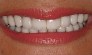 Teeth-Whitening-at-West-Main-Complete-Dentistry-After-Image