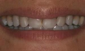 Teeth-Whitening-at-West-Main-Complete-Dentistry-Before-Image